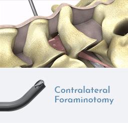 Contralateral Foraminotomy