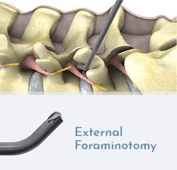 External Foraminotomy
