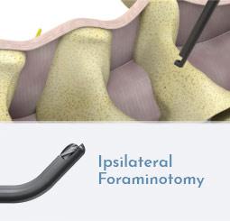 Ipsilateral Foraminotomy