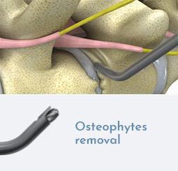 Osteophytes removal