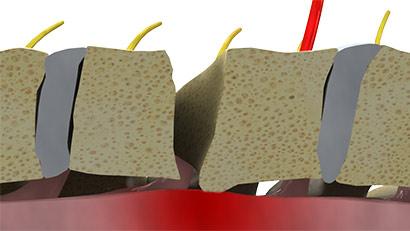 Dorsal osteophyte impingement during Anterior Cervical